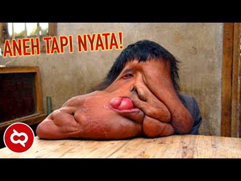 Ada Dari Indonesia.!! 10 MANUSIA ANEH DARI ASIA YANG HEBOHKAN DUNIA