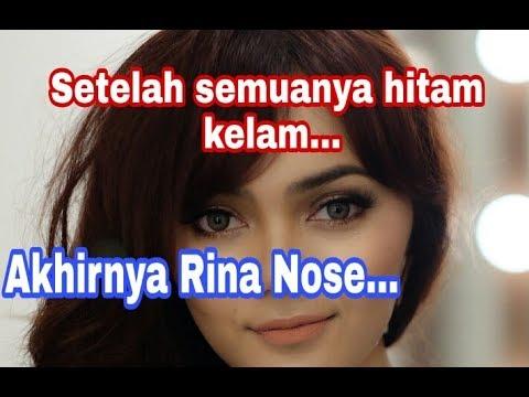 setelah semuanya Hitam!! Ada yang beda di diri Rina Nose sebulan lebih tak upd4te!!