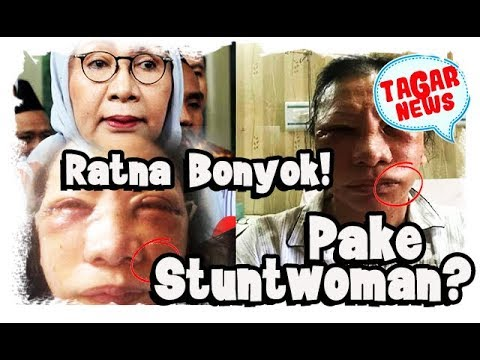 Sehari Setelah Dianiaya Ratna Ngetweet 8 Kali, Dicek Di RS Tak Ada Namanya, Pakai Stuntwoman