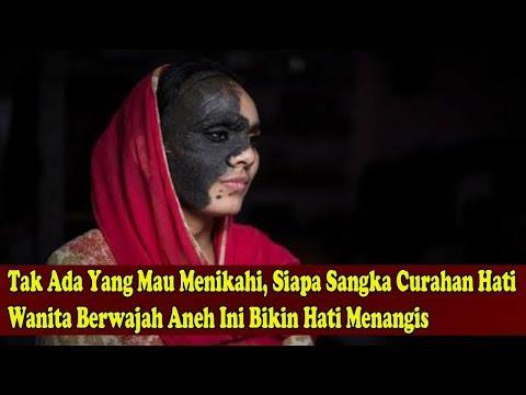 Tak Ada Yg Mau Menikahi,Siapa Sangka Cura-han Ha'ti Wanita Berwajah Ane'h Ini Bikin Hati Menang'is