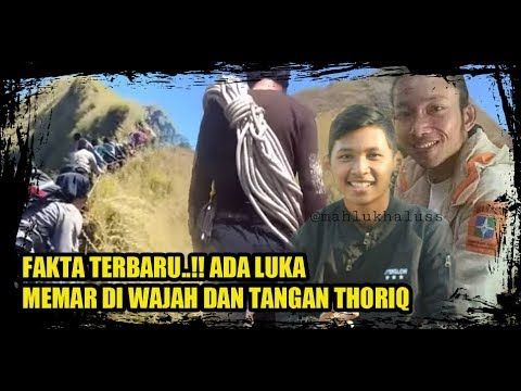 FAKTA BARU, Ada Luka Memar di Wajah dan Tangan Thoriq, Survivor yg di temukan di Gunung Piramid