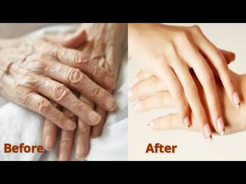RUB IT TWICE A WEEK GET BABY HANDS REMOVE OLD ROUGH HANDS